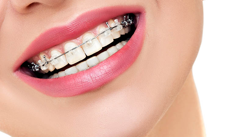 How dental crowns are installed?